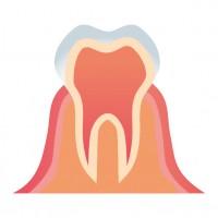 歯茎の腫れの原因!疲れが出たら要注意?