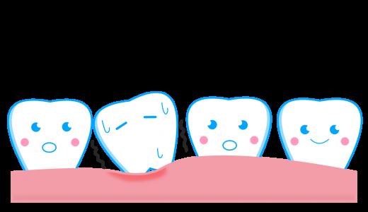 乳歯がグラグラなのになかなか抜けない!って時はこうしよう